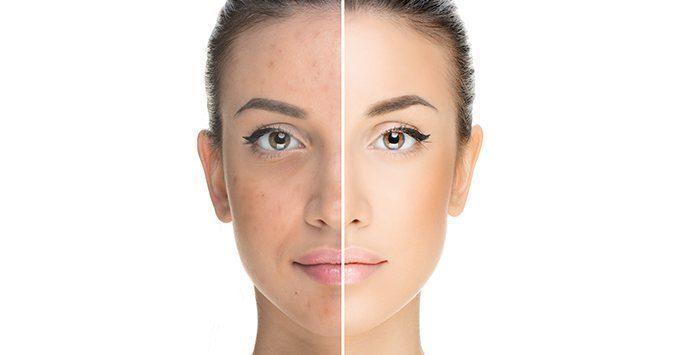 acne treatment taupo