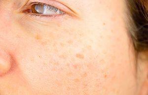 skinmatters age spots-min